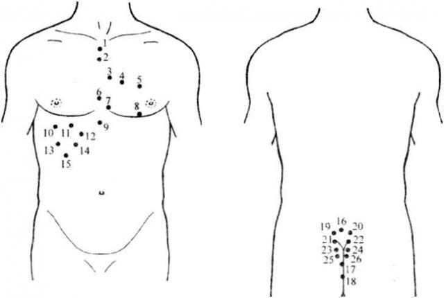 Гирудотерапия при сердечной